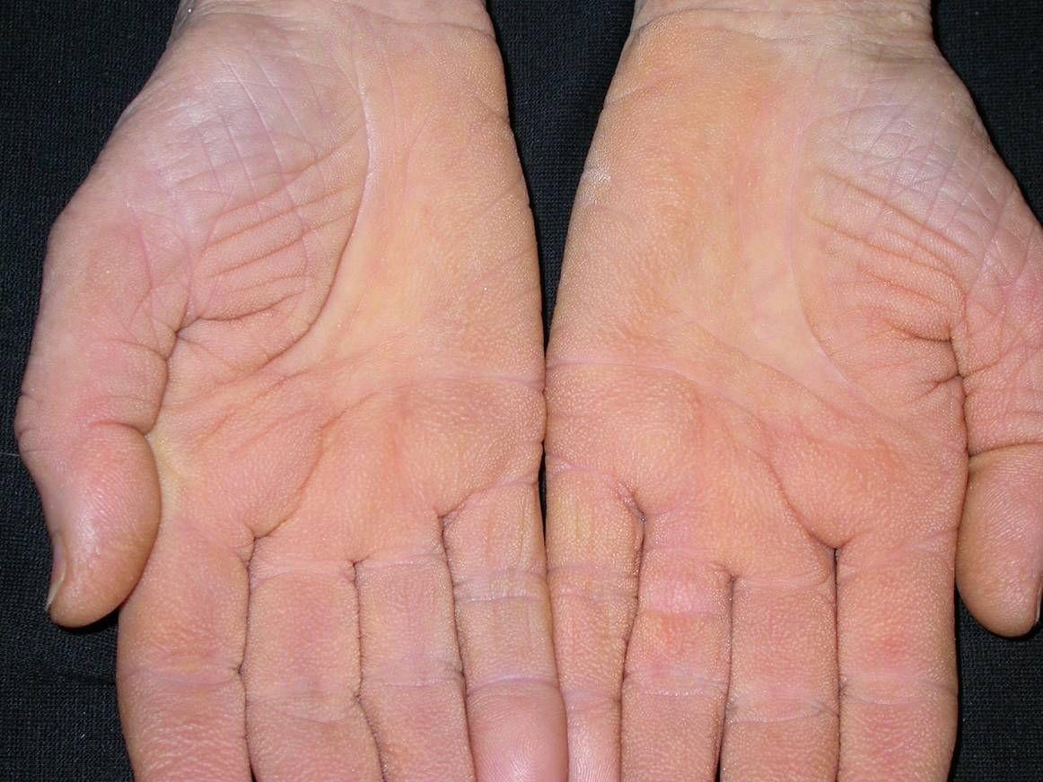 piros folt van a kéz hátán pikkelysömör kezelése az orrban