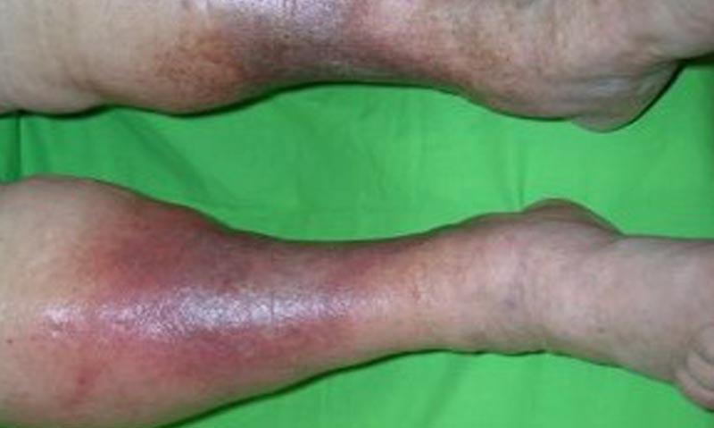 vörös folt a lábán visszérrel