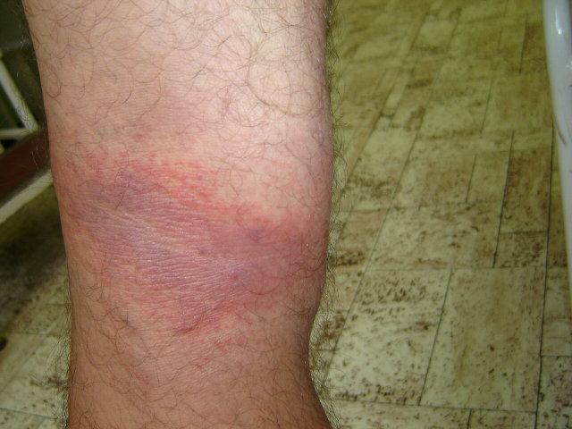 a lábak bőre megég és vörös foltok borítják
