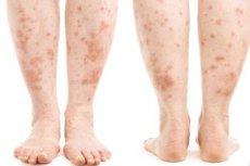 Mi a pikkelysömör kezelése? vörös foltokat emelt a karokon és a lábakon