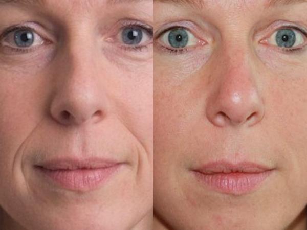 vörös foltok az arcon a biorevitalizáció után