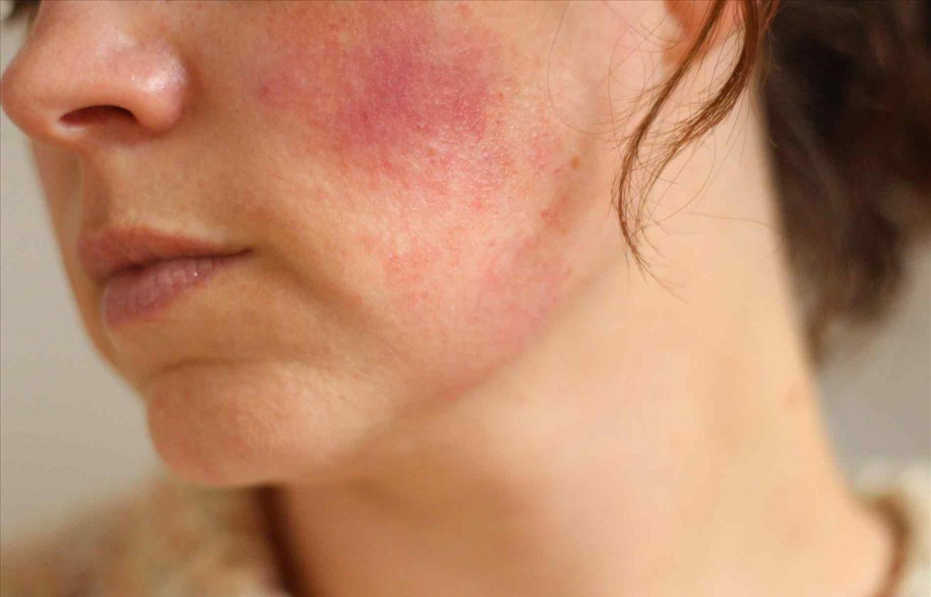 vörös foltok az arcon idősebb nőknél vörös foltok jelentek meg a lábak között, hogyan kell kezelni