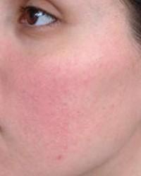 fű az arcon lévő vörös foltoktól