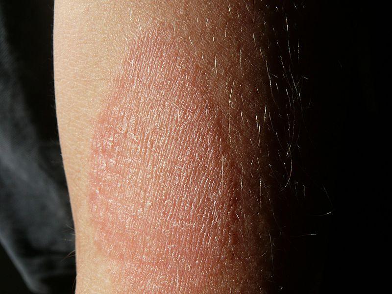 vörös pikkelyes foltok a hónalj alatt