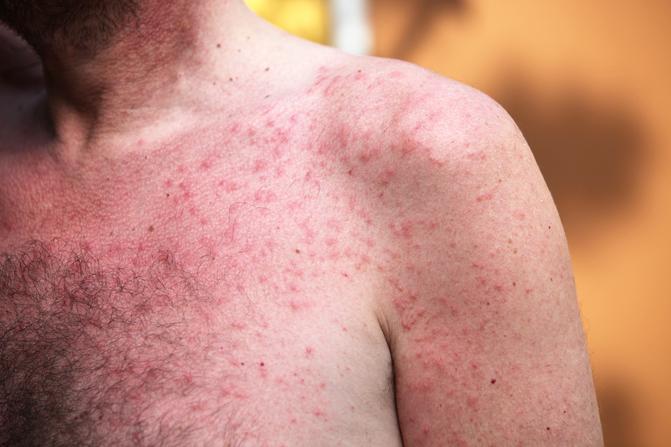 vörös száraz foltok a mellkason és a hason irritáció az arcon vörös foltok a férfiaknál