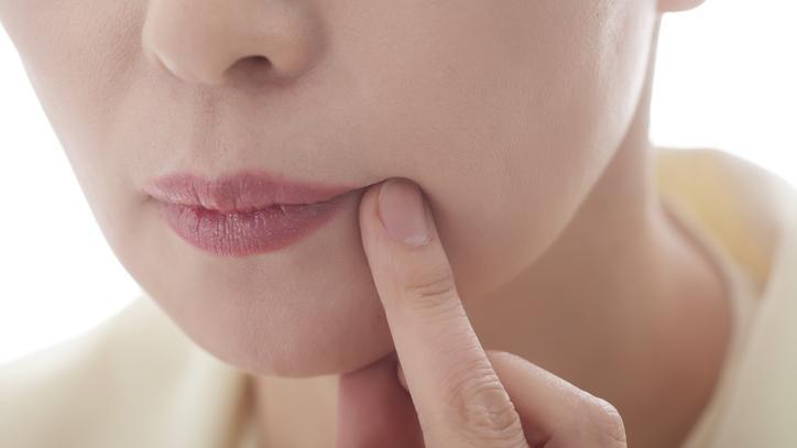 az ajkán vörös folt hámlik pikkelysömör a fej kezelésében népi gyógymódokkal