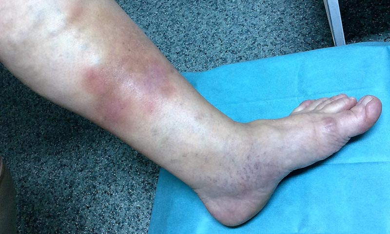 vörös foltok a lábon, visszér fotó