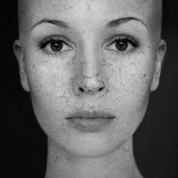 népi gyógymód pikkelysömör a haj a fejen élni egészséges pikkelysömör 2020