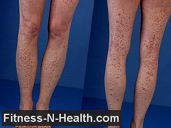a nyakon lévő vörös foltok kezelést okoznak ahonnan vörös foltok jelennek meg a lábakon és a karokon