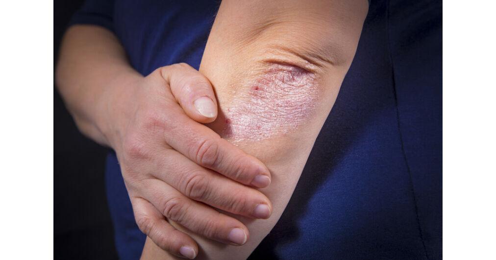 pikkelysömör, formái és kezelése paraffin pikkelysömör kezelésére