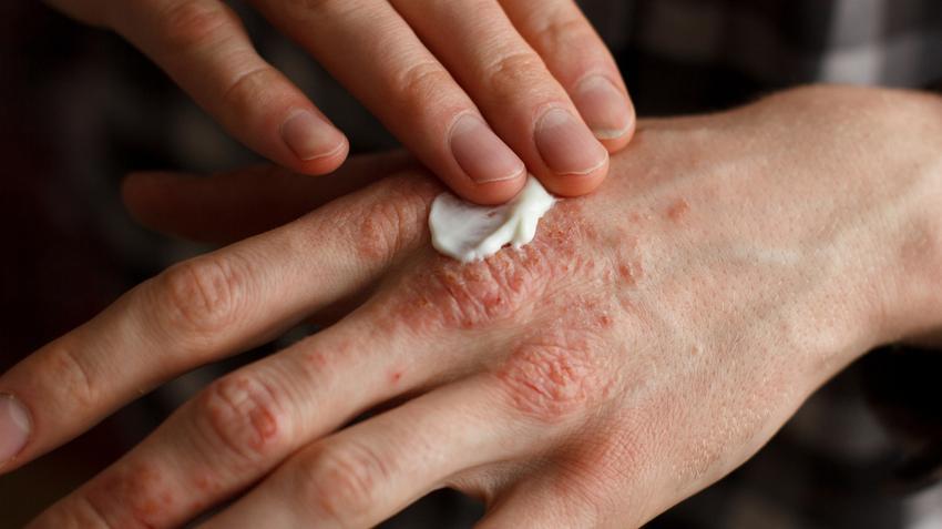 gyógyszerek majd pikkelysömör a bőrön lévő foltok karikák formájában pirosak