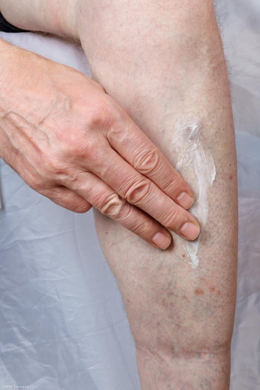 Kerekféreg lokalizáció a testben