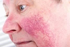 monoklonlis pikkelysmr kezels egy nagy vörös folt az arcon
