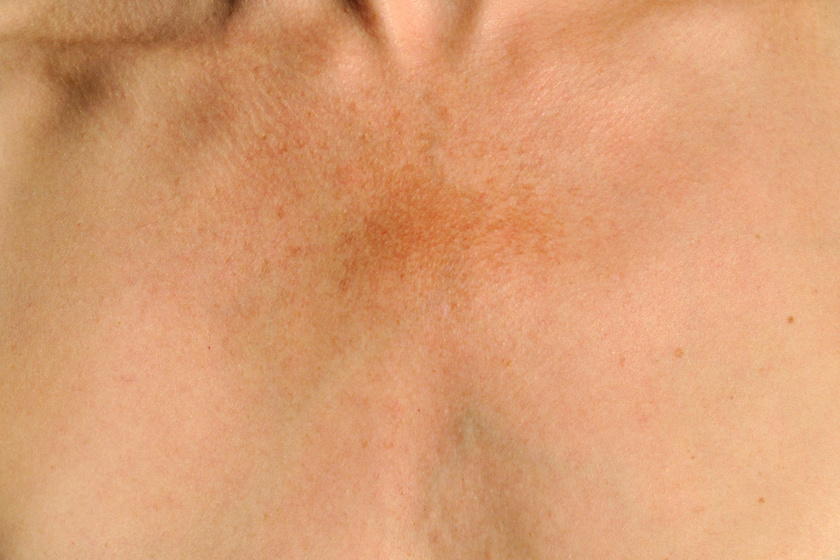 vörös napfoltok a bőrön olívaolaj kezelése pikkelysömör