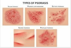 Psoriasis vulgaris | matuzalem.hu