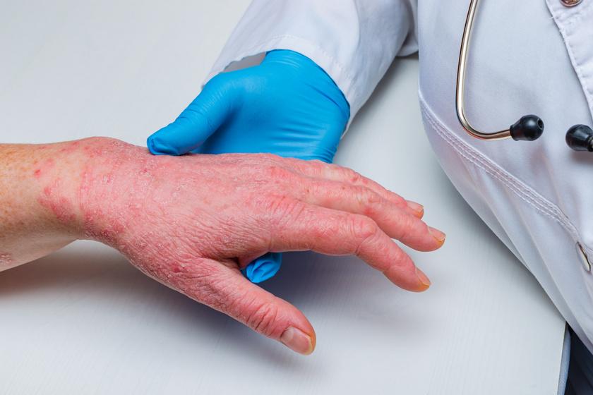 5 dolog, amit eddig nem tudtunk a pikkelysömörről - EgészségKalauz