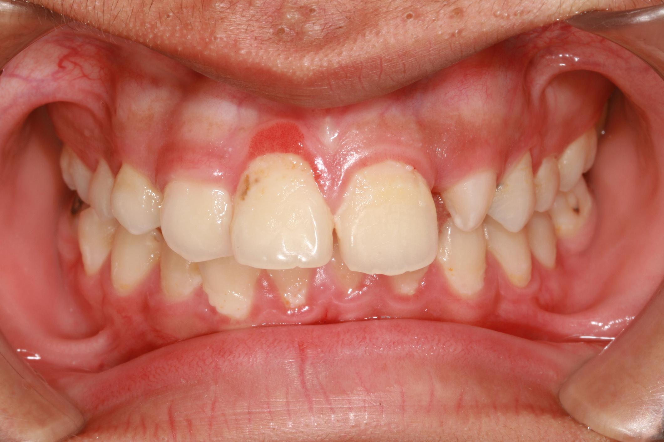 A leggyakoribb problémák a szájban - HáziPatika
