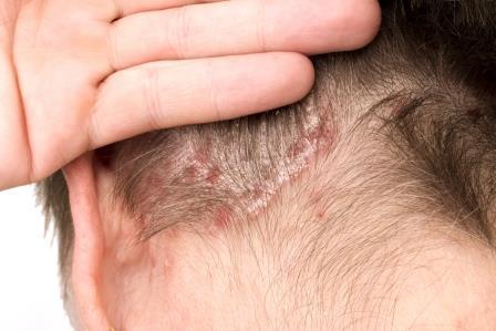 hatékony alternatív kezelések pikkelysömör a fej