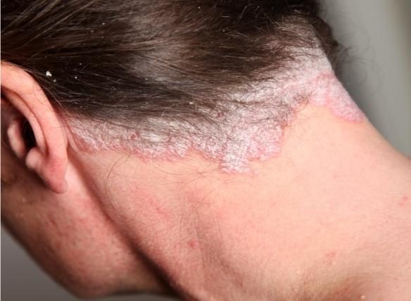 pikkelysömör kezelése Izraelben arc és nyak vörös foltokkal
