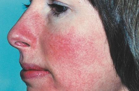 pikkelysömör viasz kezelés vörös foltok az arcon a nyakfotón