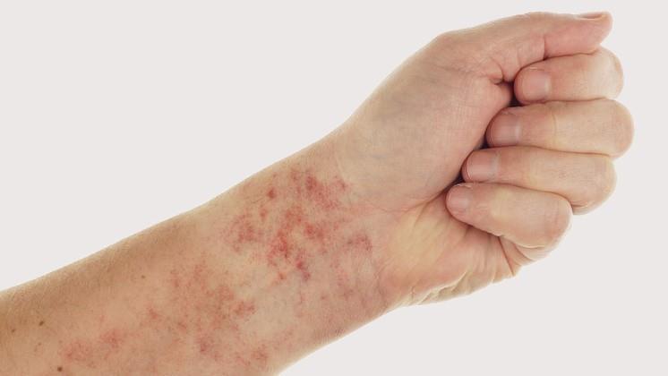 könyv pikkelysömör kezelése anti psoriasis krém d vitaminnal