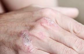 10 életmódtipp a pikkelysömör tüneteinek enyhítéséhez   BENU Gyógyszertárak