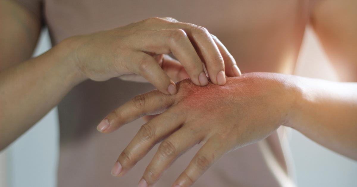 hogyan lehet meggyógyítani a pikkelysömör fején otthon vörös száraz foltokkal borított arc