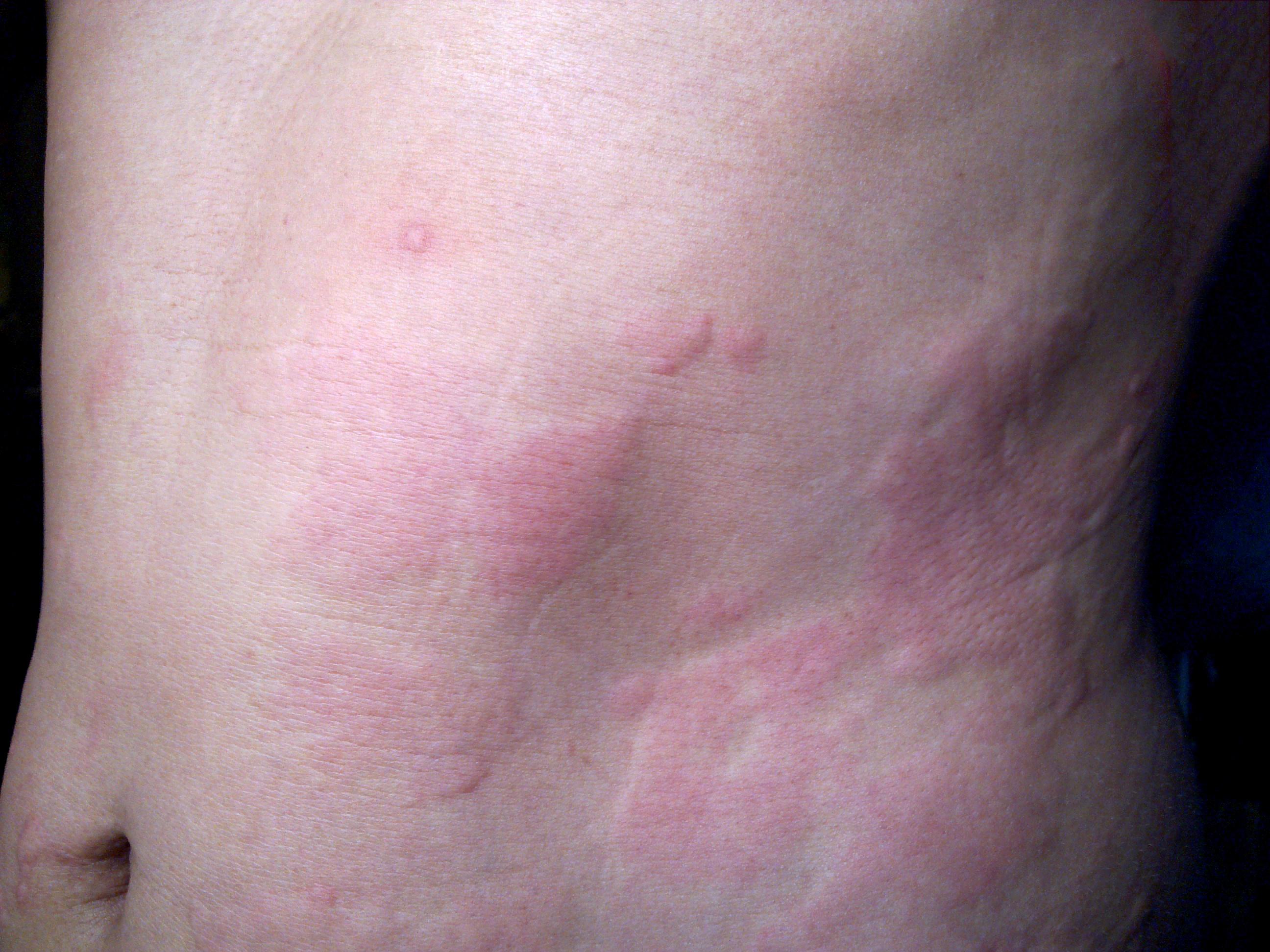10+1 nyári bőrprobléma, amelyek megelőzhetőek