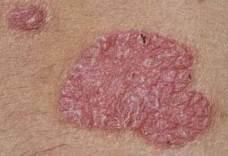 a pikkelysömör kezelése géntechnológiai gyógyszerekkel pikkelysömörből krém