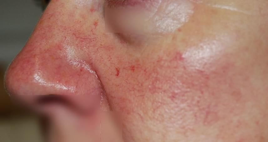 egy kis piros folt az arcon