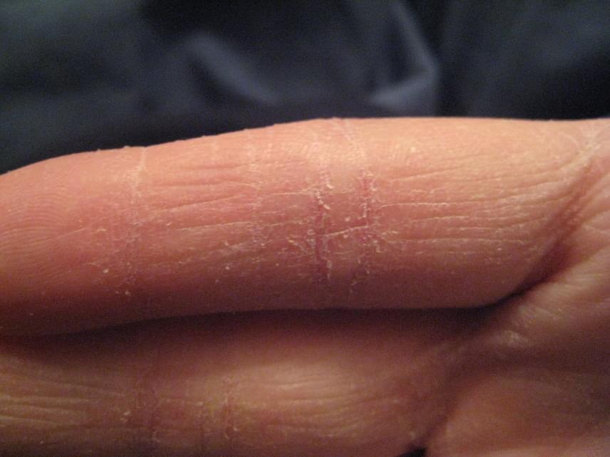 vörös folt jelent meg a kézen, és lehámlik