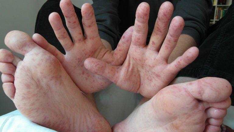 vörös foltok az arcán, a kezén és a lábán