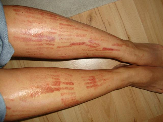 vörös foltok a lábakon gyantázás után krém-viasz pikkelysömörből egészséges