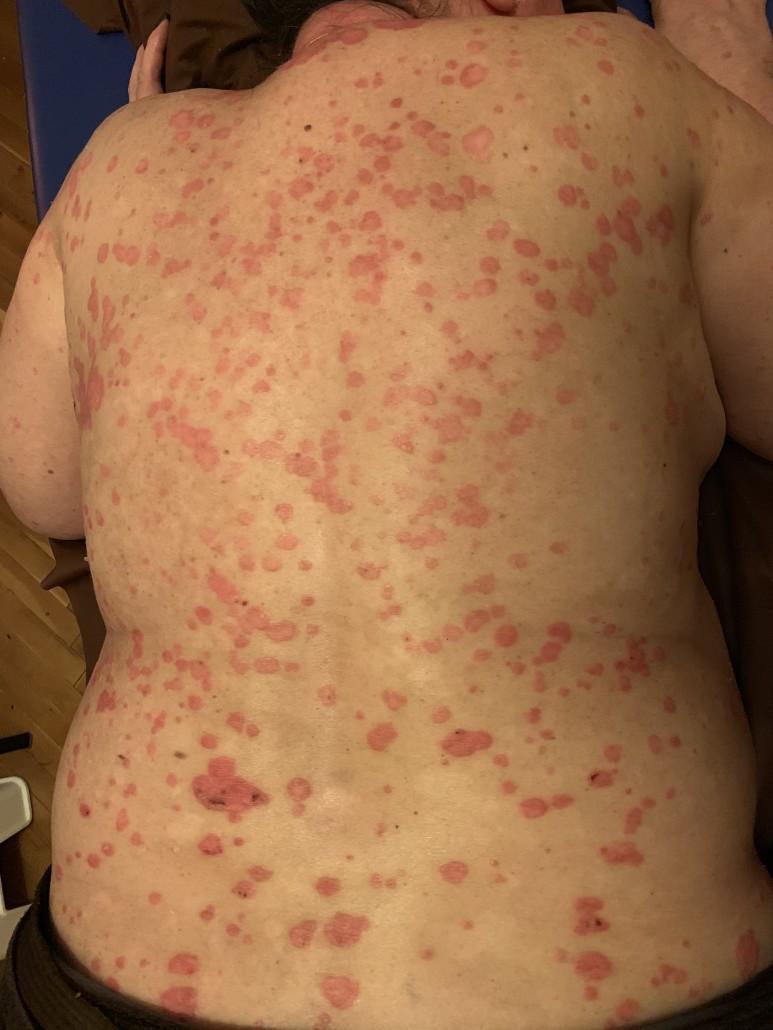 agyag kezelések pikkelysömörhöz vörös foltok a hónalj alatt és a karokon