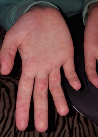 pikkelyes vörös folt a kezén viszket