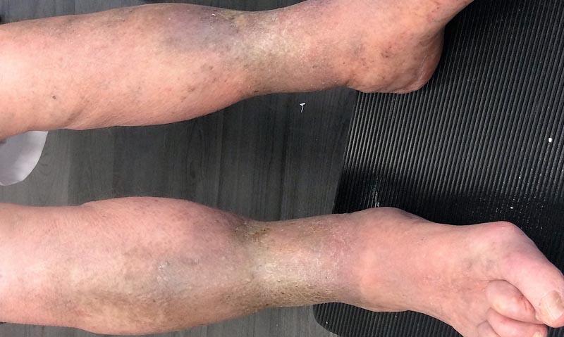 visszér vörös foltok a lábon új gyógyszerek pikkelysömör