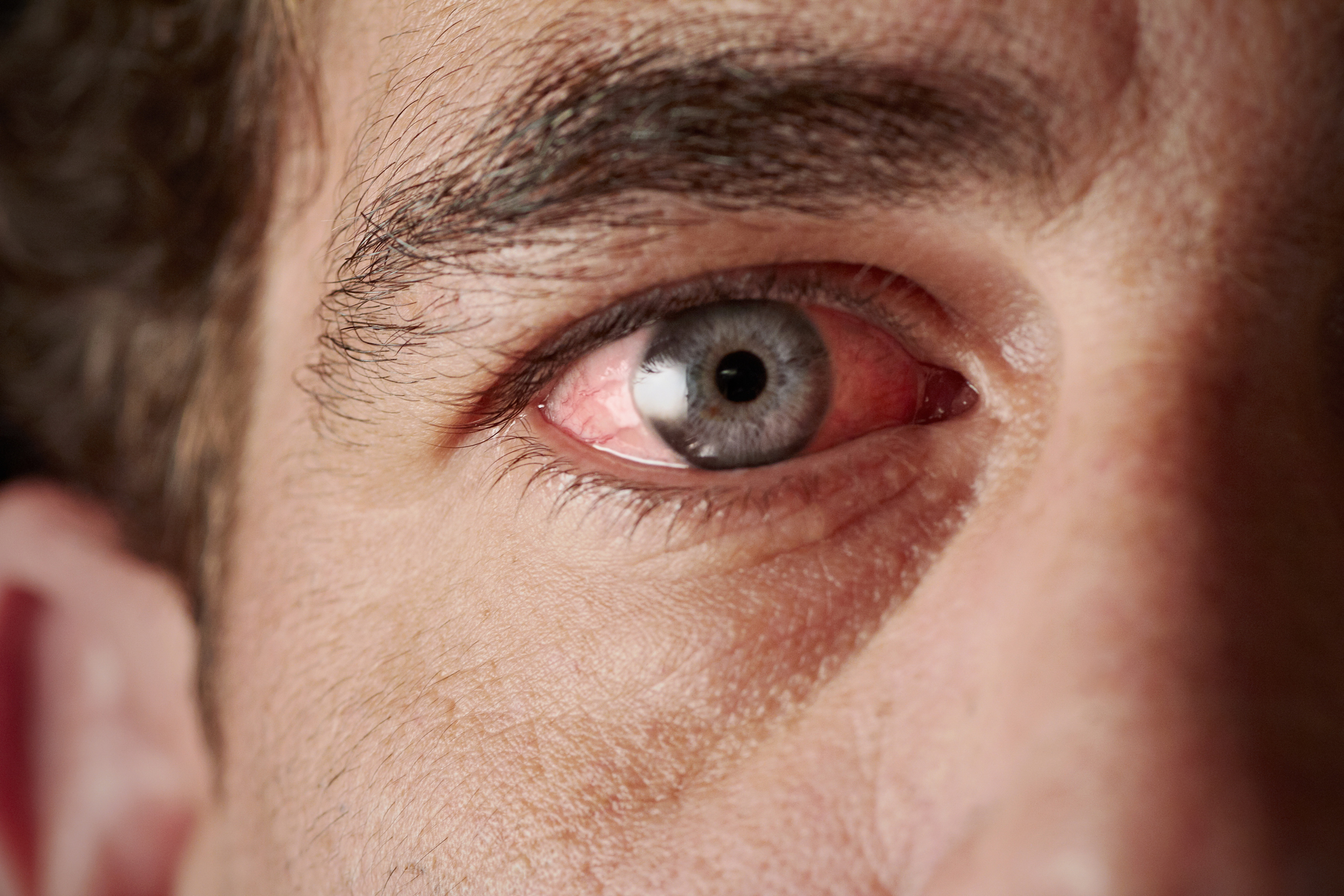egy vörös folt jelent meg a szemhéjon, lehámozódott