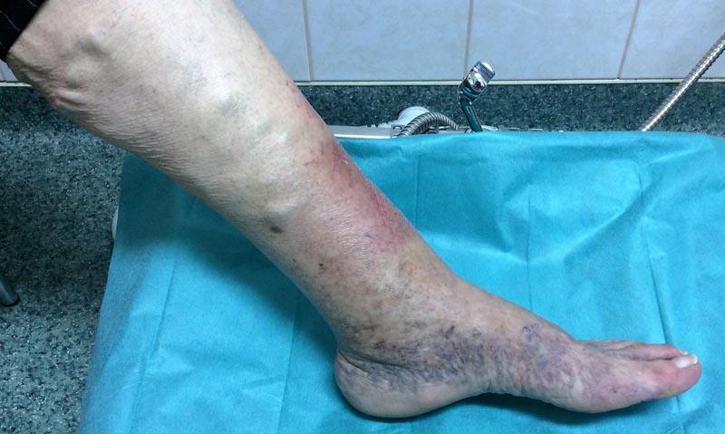 vörös foltok a visszeres lábak bőrén
