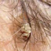sebek vagy vörös foltok és viszketés jelennek meg a fejbőrön