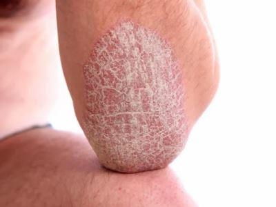kis plakk pikkelysömör kezelése arcmaszk vörös foltok és hámlás ellen