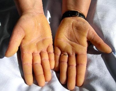 piros folt a kézen a hüvelykujj közelében homályos vörös foltok az arcon