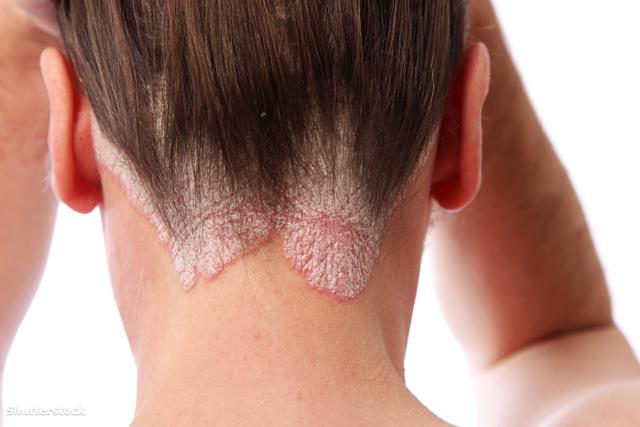 népi gyógymódok a fej és az arc pikkelysömörére gyógyított pikkelysömör bakteriofág