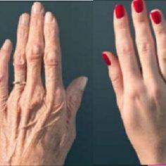 Psoriasis fotó kezdeti szakaszában, a kezelés láb