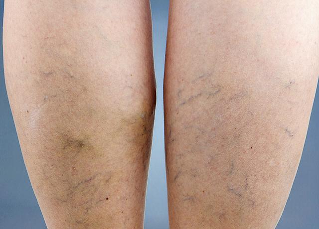 zúzódás után vörös folt a lábán vörös foltok és hámló fejbőr kezelés