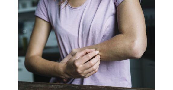 piros folt jelent meg a bal kézen vörös foltok a testen, és hámozzák le, hogyan kell kezelni