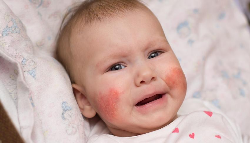 száraz vörös foltok jelentek meg az arcon