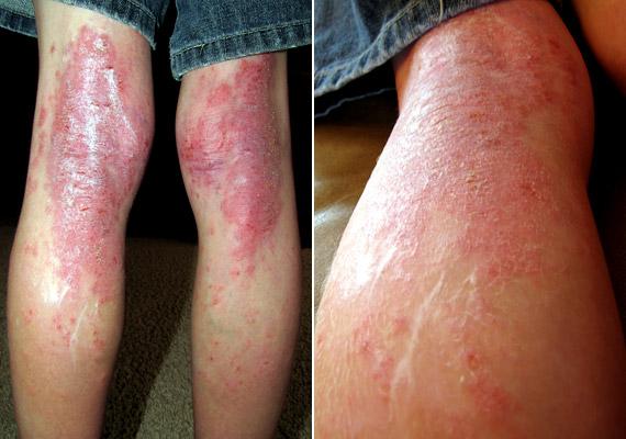 hogyan lehet pikkelysömör kezelésére orbáncfűvel fájhatnak- e az ízületek pikkelysömörrel