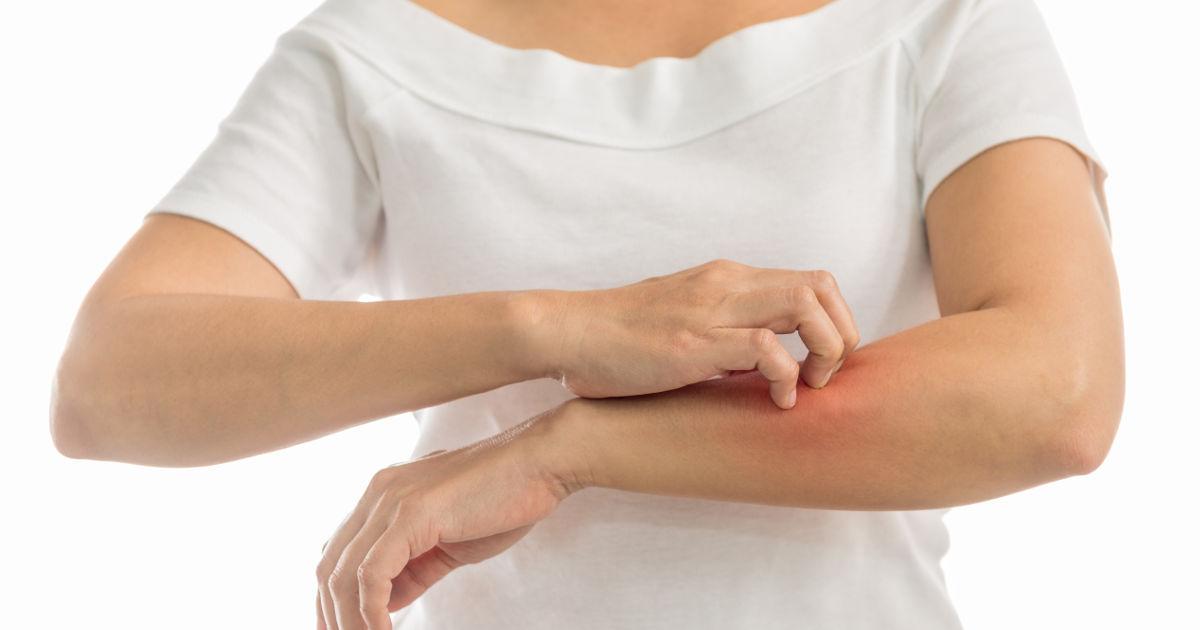 vörös foltok a kéz bőrén és viszketés kezelése