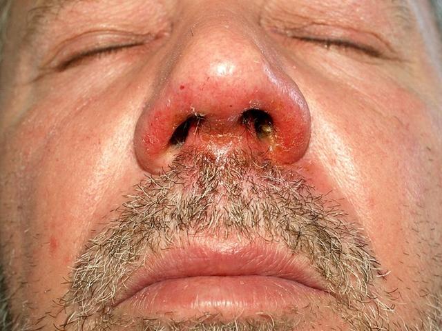 hányás után vörös foltokkal arc