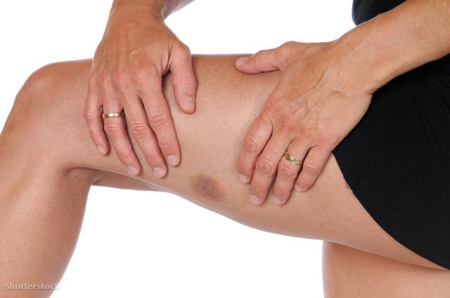 zúzódás után vörös folt a lábán